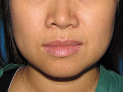 Before Buccal Fat Removal