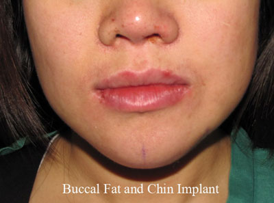 After Buccal Fat Removal