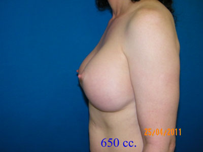After MTF (Male to Female) Breast Implants,