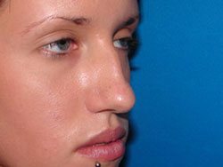 Before Nose Surgery, Rhinoplasty