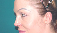 After cheek implants, Malar Implant, cheek augmentation