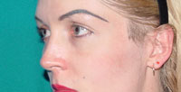 Before cheek implants, Malar Implant, cheek augmentation