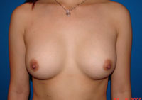 After Breast Implants, Breast Augmentation,  Mammoplasty