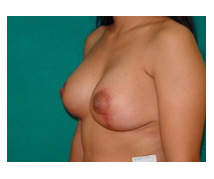 After Breast Reduction, Mastopexy, Breast Lift