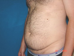Before Abdominoplasty (Tummy Tuck)