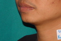Before Chin Augmentation / Reduction