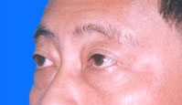 Before Lower Eyelid Surgery Fat Removal