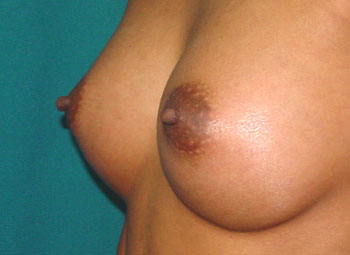 After Nipple Surgery