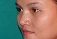 After Nose Surgery, Rhinoplasty