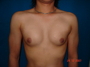 After Pectoral Implants