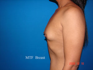 Before MTF (Male to Female) Breast Implants,