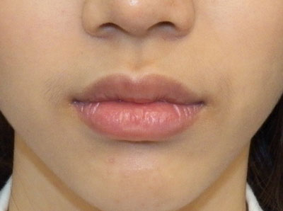 Before Lip Reduction