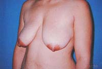Before Breast Reduction, Mastopexy, Breast Lift