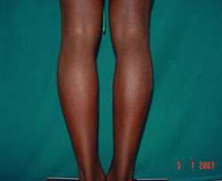 Before Calf Implants, Augmentation