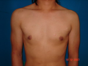 Before Pectoral Implants