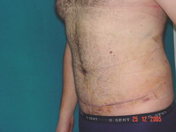 After Abdominoplasty (Tummy Tuck)
