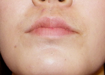 After Lip Reduction