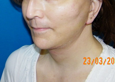 After Face/Neck  Lift ( Rhytidectomy ) Mini lift, S lift, Short Scar Face Lift, Platysmaplasty