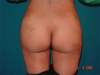 After Buttocks or Gluteal augmentation