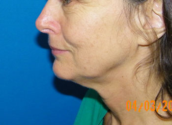 Before Face/Neck  Lift ( Rhytidectomy ) Mini lift, S lift, Short Scar Face Lift, Platysmaplasty