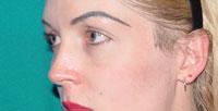 Before cheek implants, Malar Implant, cheek augmentation