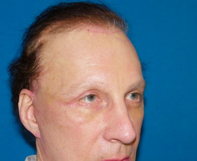 After Endoscopic Forehead Lift, Endoscopic Browlift