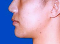 After Chin Augmentation / Reduction