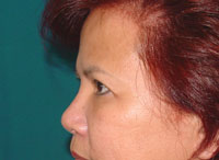 Before Forehead Lift, Brow Lift, Temporal Lift, Crow foot removal