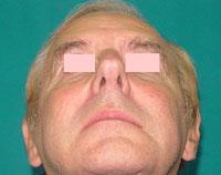 After cheek implants, Malar Implant, cheek augmentation