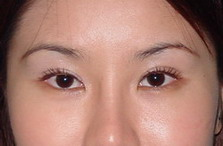 After Upper Eyelid Sugery, Eye Ptosis, Big Eye, Blepharoplasty