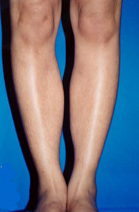 After Calf Implants, Augmentation