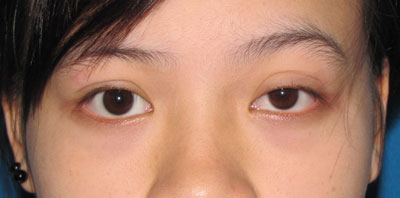 Before Upper Eyelid Sugery, Eye Ptosis, Big Eye, Blepharoplasty