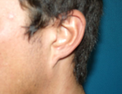 Before Ear Lobe creation, Reduction. Pixy ear