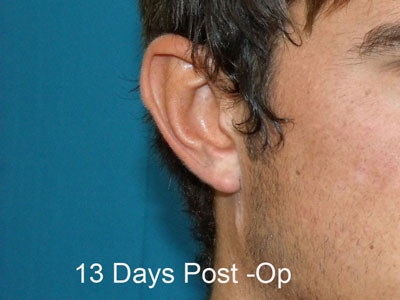 After Ear Lobe creation, Reduction. Pixy ear