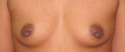 Before Nipple Surgery