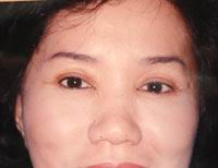 After Forehead Lift, Brow Lift, Temporal Lift, Crow foot removal