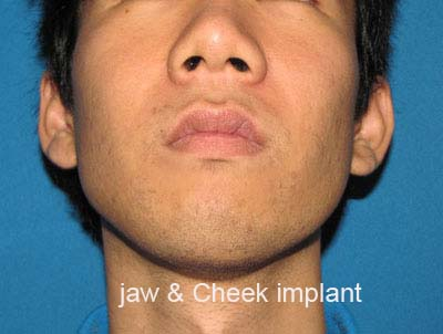 After Facial Contour, Jaw implant, cheek Implant
