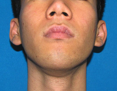 Before Facial Contour, Jaw implant, cheek Implant