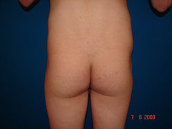 Before Buttocks or Gluteal augmentation