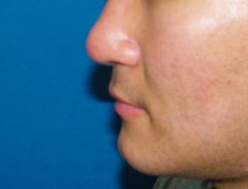 After PreMaxillary Implant